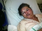 Salvaje agresión a mujer de la tercera edad en zona rural de Yopal
