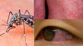 En Casanare se prev� que se presentar�n m�s de nueve mil casos Zika