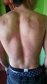 Joven que asegura haber sido golpeado por Policías, recibió 12 días de incapacidad