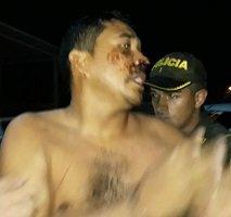 Seis heridos en operativo en Tilodirán para desalojar a indígenas del Cauca que invadieron finca