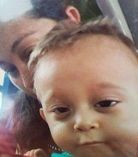 Niño que falleció en urgencias de la Clínica Casanare tenía seguimiento de ICBF por desnutrición
