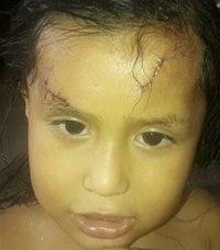 Misterioso ataque a niña de 3 años que fue víctima de heridas con arma blanca